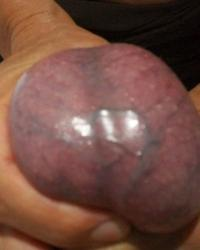 My Testicles